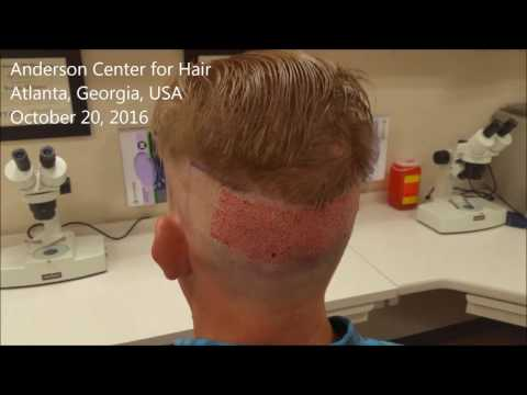 Patient IMMEDIATELY following an ARTAS Robotic FUE at Anderson Center for Hair