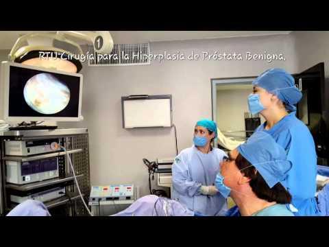 Velas prostatitis farmacias