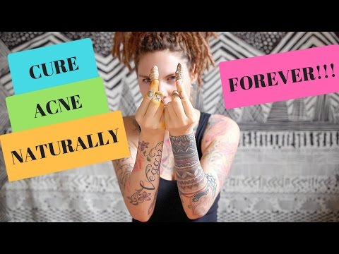 Video CURE ACNE NATURALLY FOREVER!!!