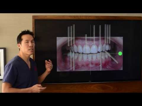 Cosmetic Dentistry - Designing a Perfect Smile