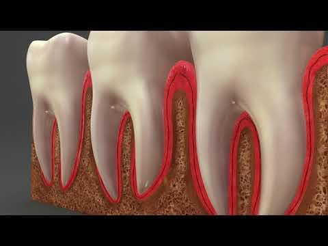 К чему снится выпадение зубов без крови и боли у себя?
