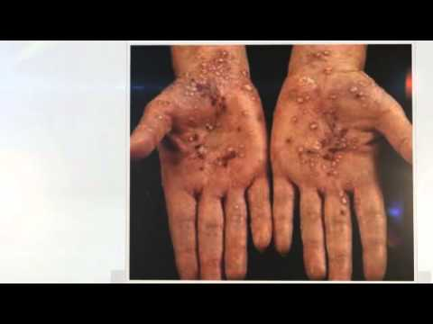 Emolenta a dermatite atopic a bambini del nome