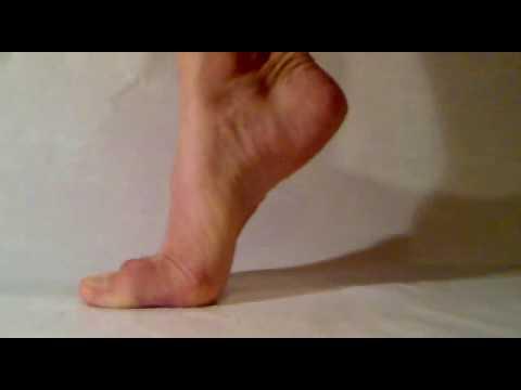 Leczenie szpotawe stopy deformacji u dzieci