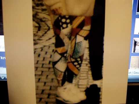 Ortopeditscheskaja die Schuhe der Valgusdeformation