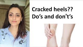 How to get soft heels | cracked heel treatment |Dermatologist | Dr. Aanchal Panth