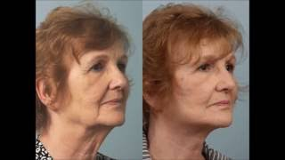 Female Facelift with Liposuction and Blepharoplasty by Dr. Edwin Williams