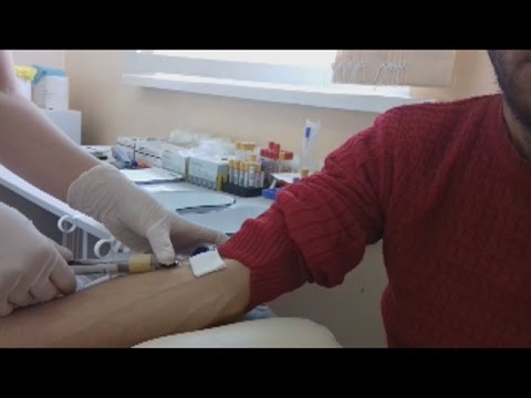 Давность заболевания гепатитом
