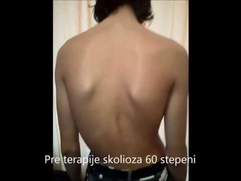 Curvatura di una spina dorsale di trattamento di reparto lombare