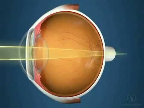 Операция на зрение в алматы