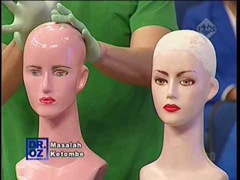 Video Episode Rambut # Dr Oz cara mengatasi ketombe # Tips menyuburkan rambut