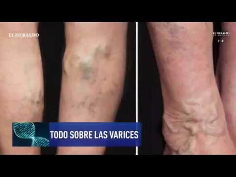 Varicoză colanți de prevenire varico