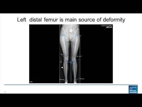 Image - Distal Femur Osteotomy for Knock Knee Deformity Live Surgery