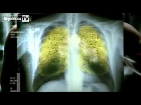 Come liberarsi da fumo per sempre di rimedi di gente
