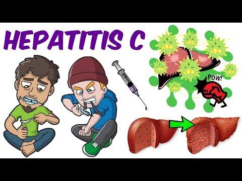 Akut prosztatagyulladás és hematuria