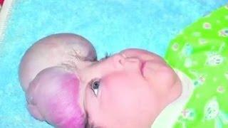 В Одессе родился ребенок без черепа | Говорить Україна