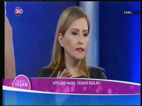 vitiligo nedir Dr Ülkü Duraksoy