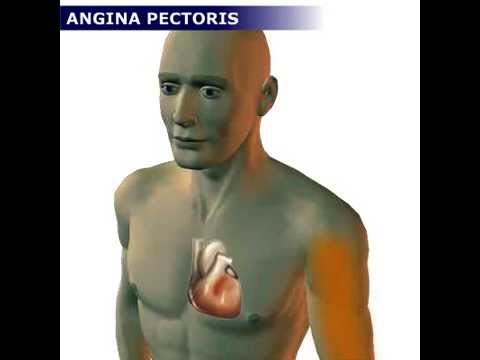 Magas vérnyomás vizeletvizsgálata