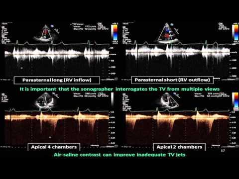 Intrakranielle Hypertension bei Neugeborenen