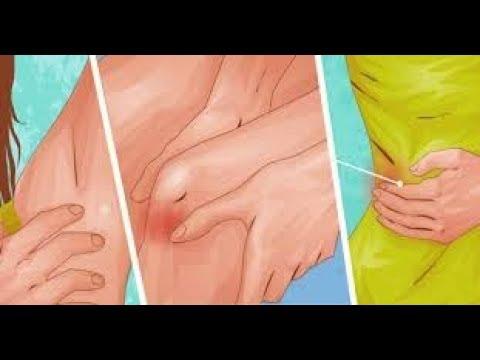 Le traitement du psoriasis progressivement