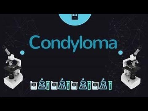 Fehér condyloma HPV-fertőzés tünetei és kezelése - HáziPatika