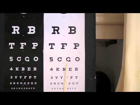Myopia astigmatism adalah