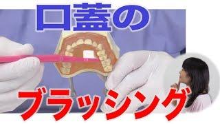 口蓋のブラッシング術
