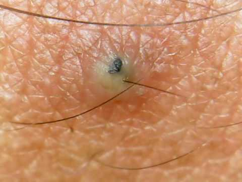 Ingrown Hair ZIT!