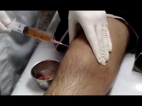 Il trattamento della colonna vertebrale kosmoenergetiki
