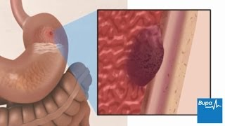 Peptic ulcers | Health Information | Bupa UK