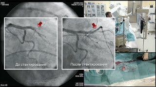 Реканализация коронарной артерии