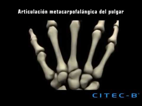Tratamiento de la osteoartritis fonoforesis