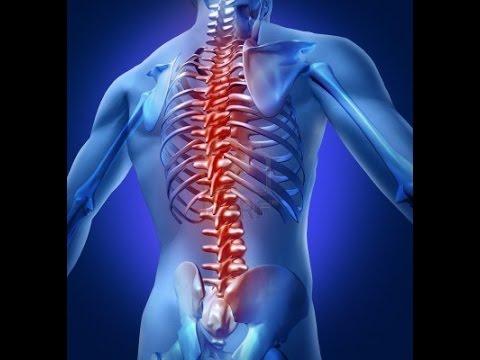 Video Penyebab Sakit Punggung dan Pinggang Belakang