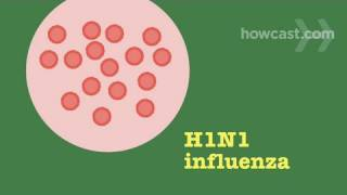 Influenza - The Swine Flu: Prevention & Detection
