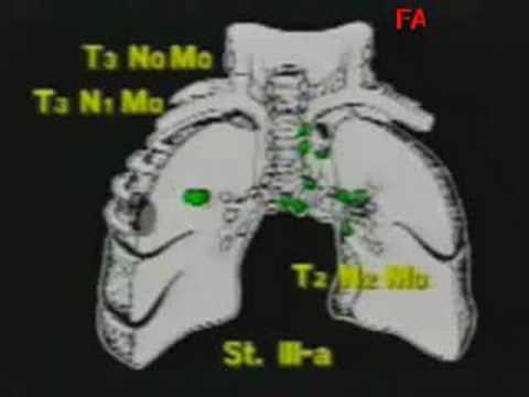 Il cancro della prostata con la disintegrazione