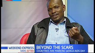 1.6 million Kenyans are living with AIDS | Beyond The Scars