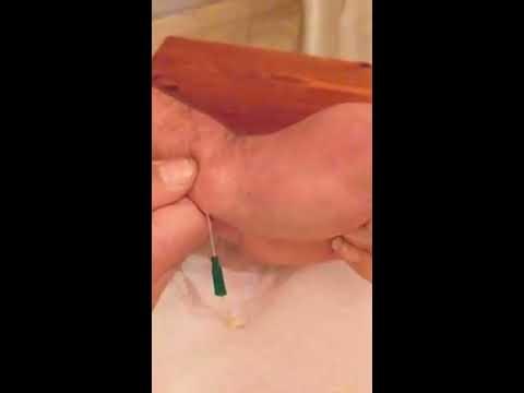 Behandlung verlässt Meerrettich Arthrose