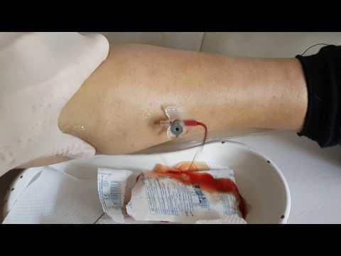 Виды физиотерапии на шейный отдел позвоночника