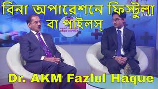 বিনা অপারেশনে ফিস্টুলা (পাইলস্) | Dr. AKM Fazlul Haque | Fistula-In-Ano | Piles | Doctor's Advice 25