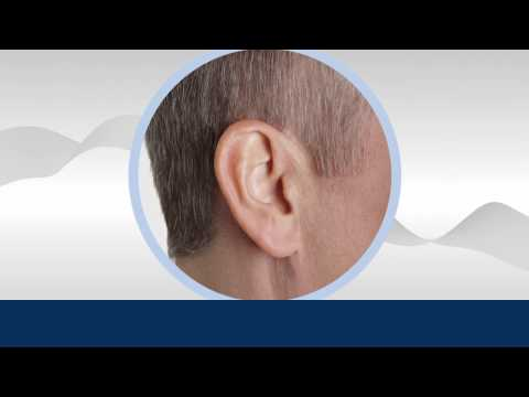 Dallas Hearing Aids | Starkey Soundlens Hearing Aid