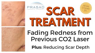Scar Treatment - Redness from CO2 Laser Fades, and PRP Can Improve Scar Depth