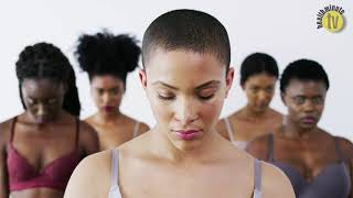 Lack of images of skin of colour in Covid-19 studies