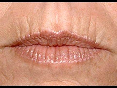 Кисетные морщины над верхней губой: ПОЧЕМУ ВОЗНИКАЮТ?
