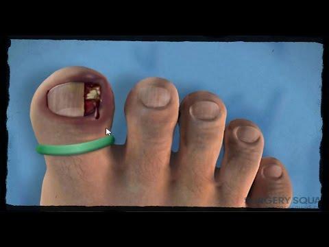 Los medios públicos del tratamiento de la inflamación de la uña en el pie