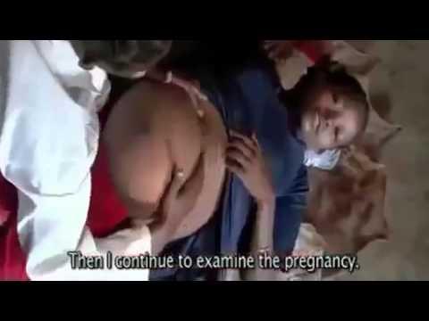 Es kann dem Gebärmutter während der Schwangerschaft beim Sex verletzt