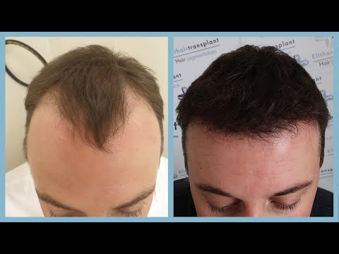 Tipi di maschere per capelli di numero