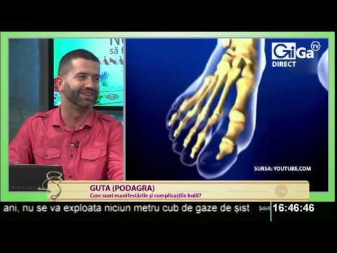 Dureri articulare de artrită reumatoidă la ambele mâini