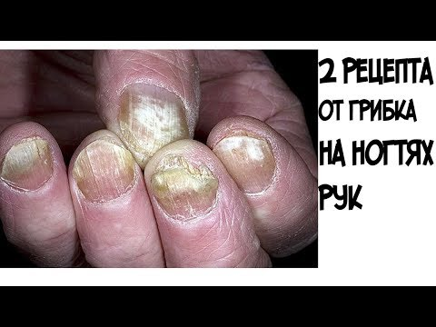 Die Präparate für die Vernichtung gribka der Nägel