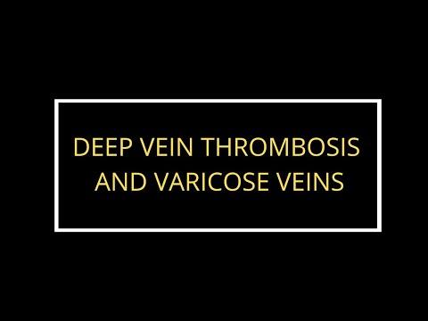 Come anestetizzare la posizione di vene