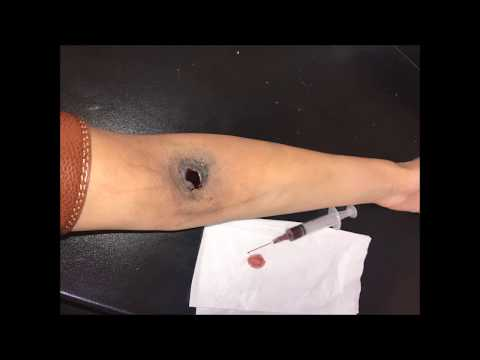 A varicosity raccogliere erboso