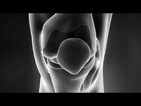 Krónikus térdszinovitisz kezelés